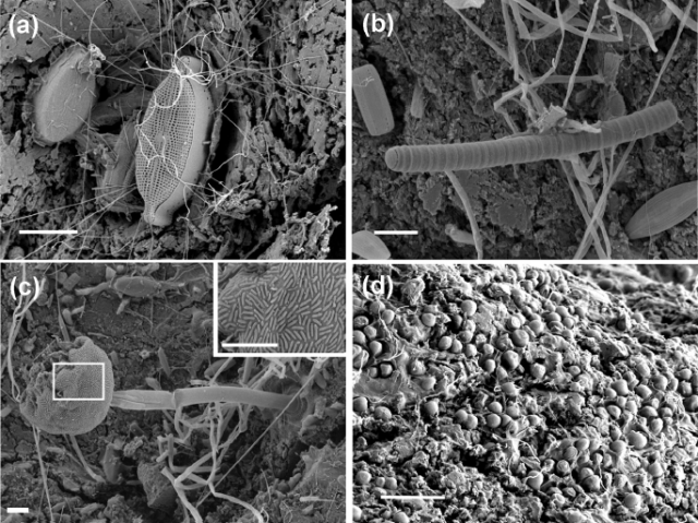 """Scanning electron microscope images showing examples of the rich microbial community on plastic marine debris. From Zettler, Erik Red, Tracy J. Mincer, and Linda A. Amaral-Zettler. """"Life in the 'Plastisphere': Microbial communities on plastic marine debris."""" Environmental science & technology (2013)."""