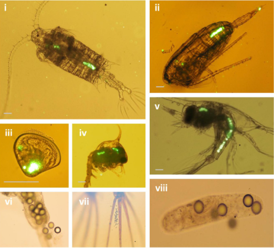 """Images of microplastic ingestion by plankton. From Cole, Matthew, et al. """"Microplastic ingestion by zooplankton."""" Environmental science & technology (2013)."""